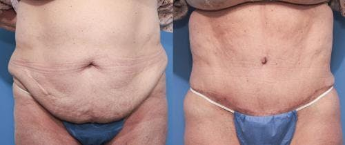 Tummy Tuck Gallery - Patient 58470096 - Image 1