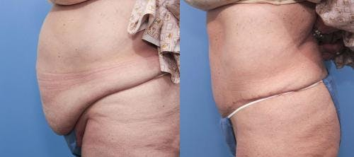 Tummy Tuck Gallery - Patient 58470096 - Image 3