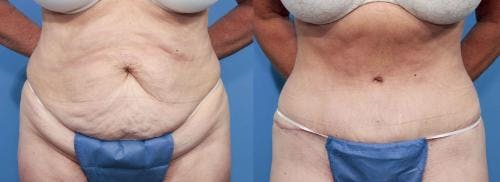 Tummy Tuck Gallery - Patient 58470098 - Image 1