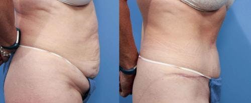 Tummy Tuck Gallery - Patient 58470098 - Image 2