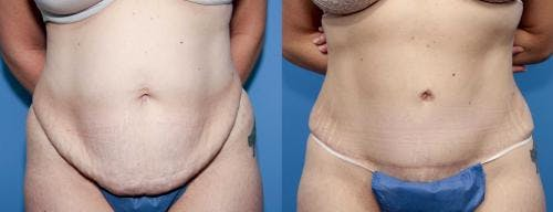 Tummy Tuck Gallery - Patient 58470104 - Image 1