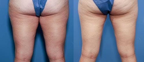 Tummy Tuck Gallery - Patient 58470104 - Image 3