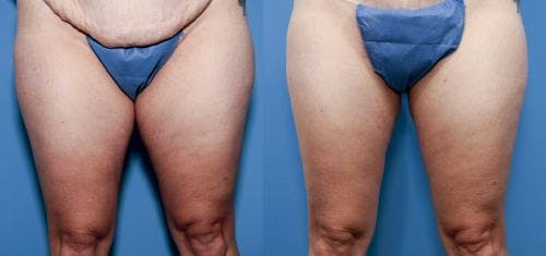 Tummy Tuck Gallery - Patient 58470104 - Image 4