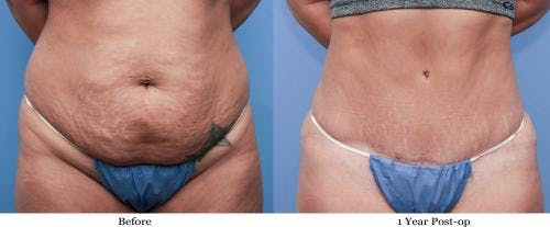 Tummy Tuck Gallery - Patient 58470105 - Image 1