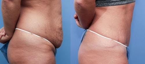 Tummy Tuck Gallery - Patient 58470105 - Image 2