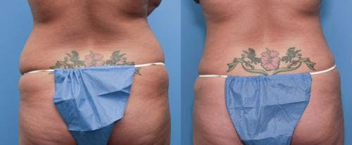 Tummy Tuck Gallery - Patient 58470105 - Image 3