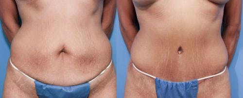 Tummy Tuck Gallery - Patient 58470106 - Image 1