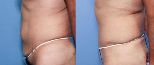 Tummy Tuck Gallery - Patient 58470106 - Image 2