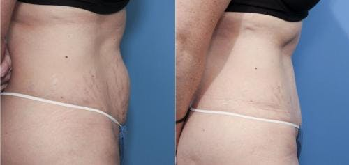Tummy Tuck Gallery - Patient 58470108 - Image 2