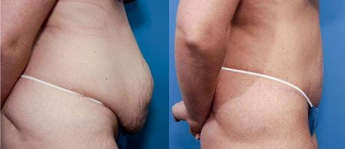 Tummy Tuck Gallery - Patient 58470109 - Image 2