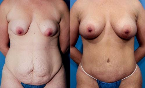 Tummy Tuck Gallery - Patient 58470109 - Image 3