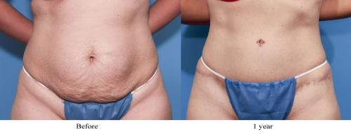 Tummy Tuck Gallery - Patient 58470110 - Image 1