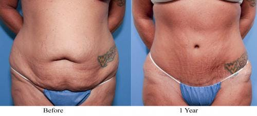 Tummy Tuck Gallery - Patient 58470111 - Image 1