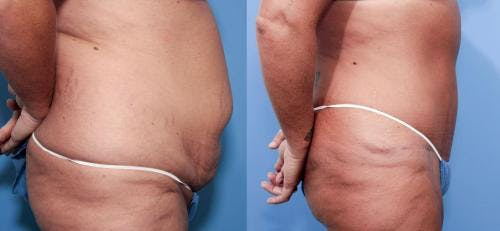 Tummy Tuck Gallery - Patient 58470111 - Image 2