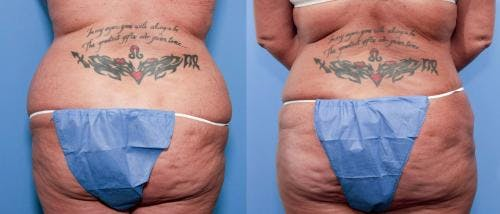 Tummy Tuck Gallery - Patient 58470111 - Image 3