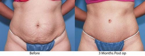 Tummy Tuck Gallery - Patient 58470113 - Image 1