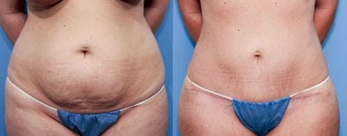 Tummy Tuck Gallery - Patient 58470114 - Image 1