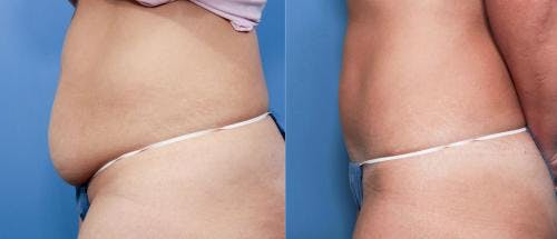 Tummy Tuck Gallery - Patient 58470115 - Image 2