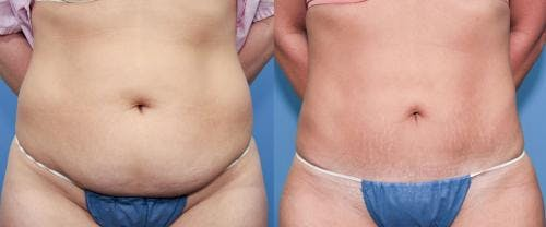 Tummy Tuck Gallery - Patient 58470119 - Image 1