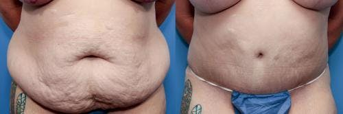 Tummy Tuck Gallery - Patient 58470122 - Image 1