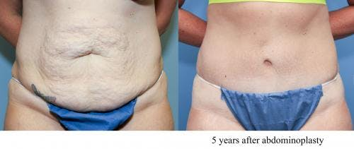 Tummy Tuck Gallery - Patient 58470124 - Image 1
