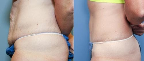 Tummy Tuck Gallery - Patient 58470124 - Image 2