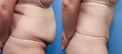 Tummy Tuck Gallery - Patient 58470129 - Image 2