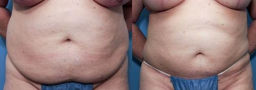 Tummy Tuck Gallery - Patient 58470130 - Image 1