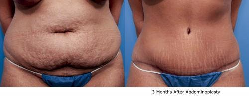Tummy Tuck Gallery - Patient 58470131 - Image 1