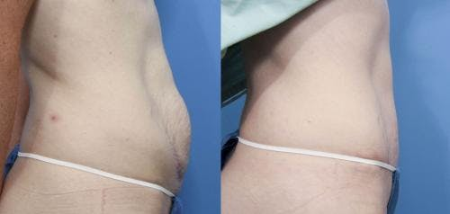 Tummy Tuck Gallery - Patient 58470136 - Image 2