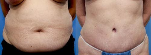 Tummy Tuck Gallery - Patient 58470174 - Image 1