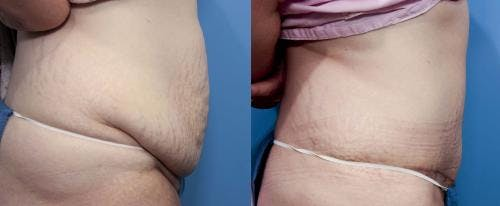 Tummy Tuck Gallery - Patient 58470175 - Image 2