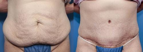 Tummy Tuck Gallery - Patient 58470175 - Image 1