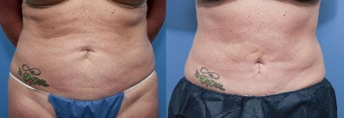 Tummy Tuck Gallery - Patient 58470176 - Image 1