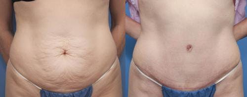 Tummy Tuck Gallery - Patient 58470177 - Image 1
