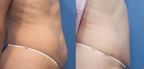 Tummy Tuck Gallery - Patient 58470177 - Image 2