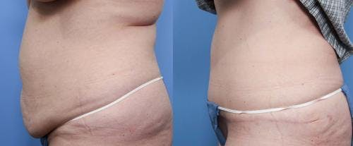 Tummy Tuck Gallery - Patient 58470178 - Image 2