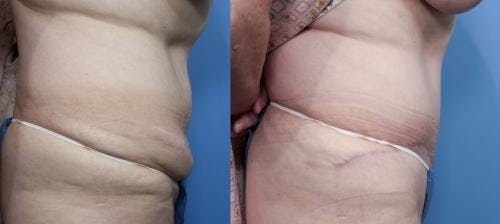 Tummy Tuck Gallery - Patient 58470179 - Image 2