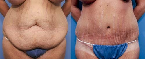 Tummy Tuck Gallery - Patient 58470180 - Image 1