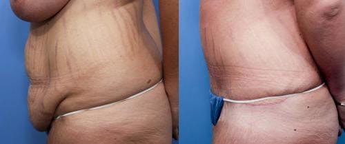 Tummy Tuck Gallery - Patient 58470180 - Image 2