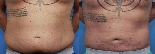 Tummy Tuck Gallery - Patient 58470181 - Image 1