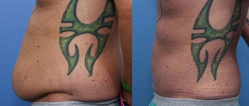 Tummy Tuck Gallery - Patient 58470181 - Image 2