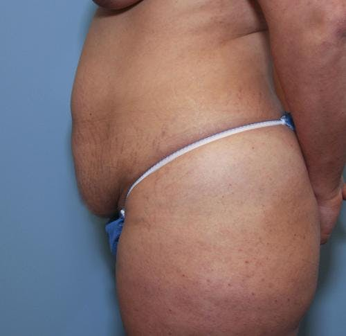 Tummy Tuck Gallery - Patient 58470185 - Image 3