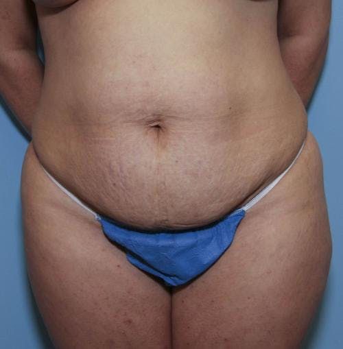 Tummy Tuck Gallery - Patient 58470185 - Image 1