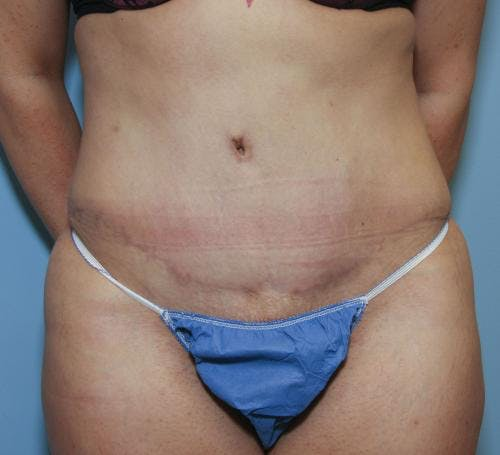 Tummy Tuck Gallery - Patient 58470185 - Image 2