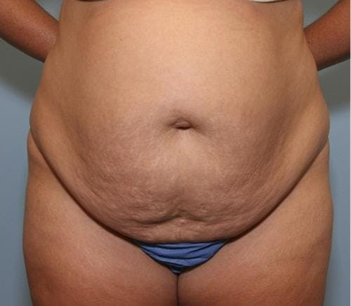 Tummy Tuck Gallery - Patient 58470186 - Image 1