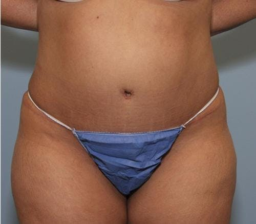 Tummy Tuck Gallery - Patient 58470186 - Image 2
