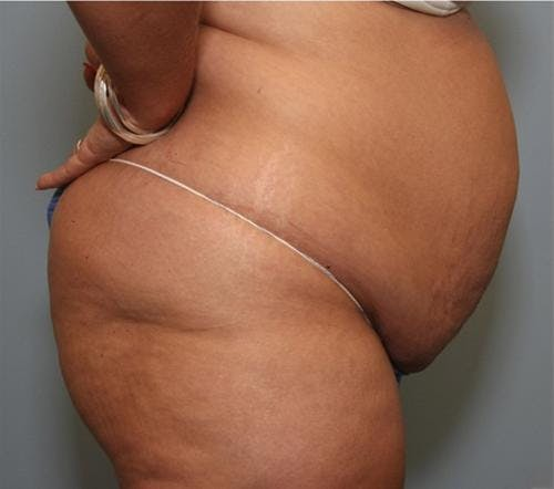 Tummy Tuck Gallery - Patient 58470186 - Image 3