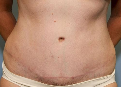 Tummy Tuck Gallery - Patient 58470187 - Image 2