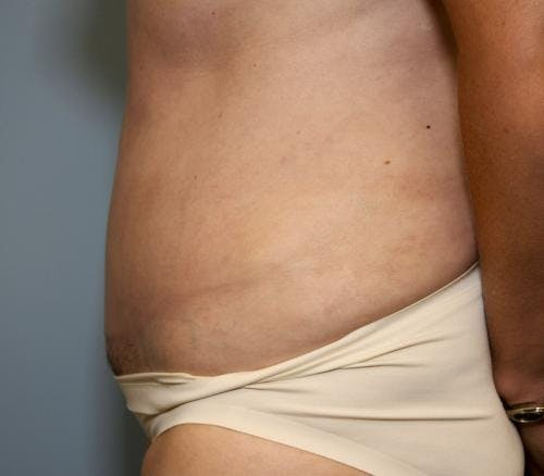 Tummy Tuck Gallery - Patient 58470187 - Image 4